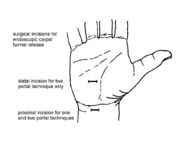 Surgical incisions for endoscopic carpal tunnel re