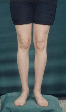 Before cosmetic calf augmentation.