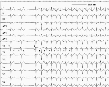 This 12-lead electrocardiogram demonstrates an atr