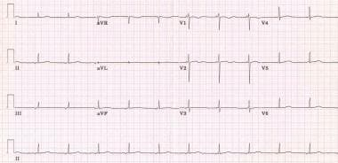 Note the retrograde P waves that precede each QRS