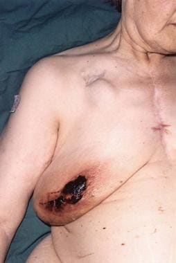 Wound infection due to disturbed coagulopathy. Thi