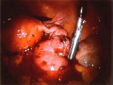 Laparoscopic picture of an unruptured right ampull