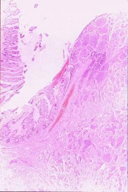 A section (on the right) of an intestinal carcinoi