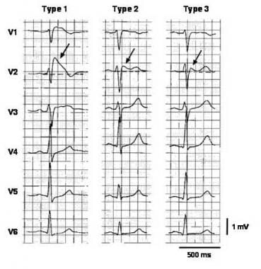 Three types of ST-segment elevation in Brugada syn