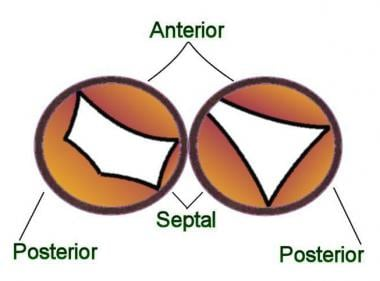 Partial atrioventricular septal defect (AVSD): The