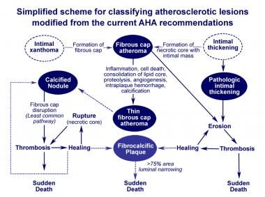 Atherosclerosis pathology. Simplified scheme for c