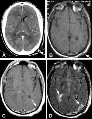 Brain Contusion Imaging: Practice Essentials, Computed Tomography