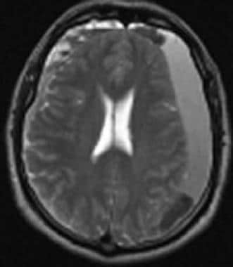 T2-weighted magnetic resonance imaging in a patien