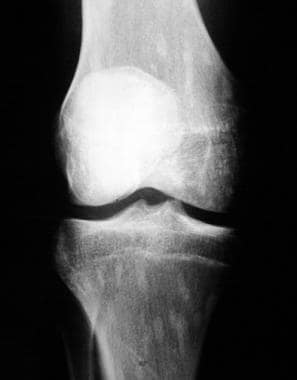 Osteopoikilosis. A plain film radiographic image o