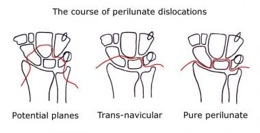 Wrist, perilunate injuries. Line diagram depicts a