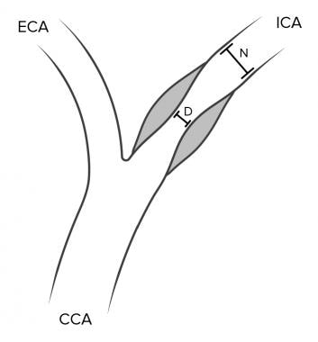 North American Symptomatic Carotid Endarterectomy