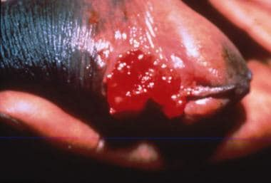 Granuloma inguinale (Image courtesy of Hon Pak, MD