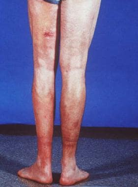 Lower back part of the legs shows hypopigmentation