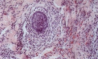 Which Histologic Findings Are Characteristic Of Eosinophilic