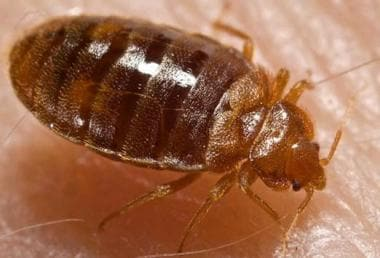 Bedbugs are parasitic arthropods from the family C