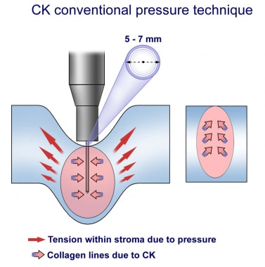 Conductive keratoplasty conventional pressure tech