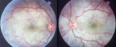 Bilateral, multifocal serous detachments in a pati