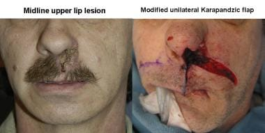 Left: A patient with a midline upper lip lesion. R
