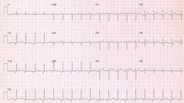 Accelerated junctional rhythm is present in this p