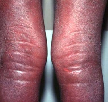 Indurated edematous plaques of hypereosinophilic s