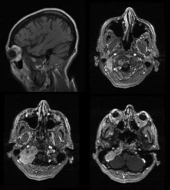 Intracranial plasmacytoma. Sagittal and axial T1-w