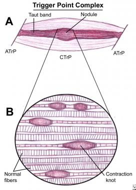Myofascial pain in athletes. Schematic of a trigge