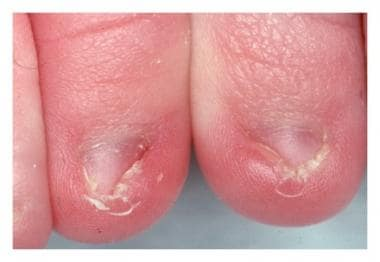 Neonatal ingrown nail. Courtesy of Dermatology Res