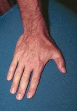 After thumb replantation.