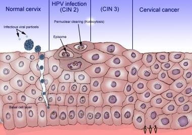 Human papillomavirus infection of epithelium.