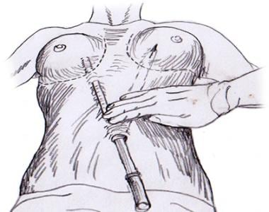 Transumbilical approach to breast augmentation.