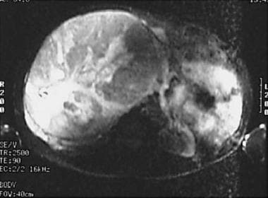 T2-weighted MRI demonstrates a large right adrenoc