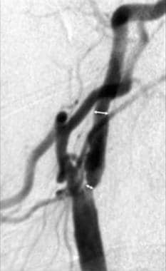 Lateral common carotid angiogram shows appropriate