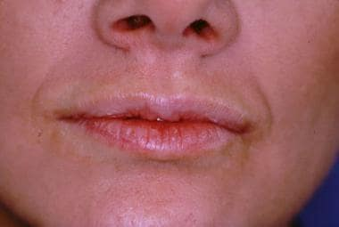 Patient prior to bovine collagen injection for lip