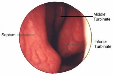 Endoscopic view from nares of left nasal passage.