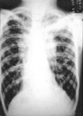 Chest radiograph of a patient with advanced cystic