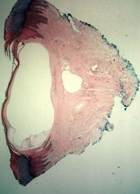 Histopathology of digital mucous cyst.