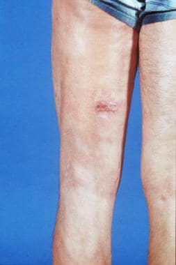 Posterior thigh shows woody induration, sclerosis,