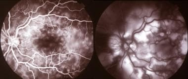 Fluorescein angiography of the left eye in a patie