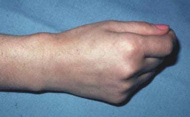 In de Quervain tenosynovitis, the first dorsal com
