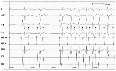 Atrial tachycardia. Note that the atrial activitie