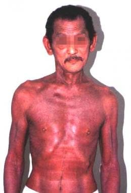 Erythroderma in a patient with hypereosinophilic s