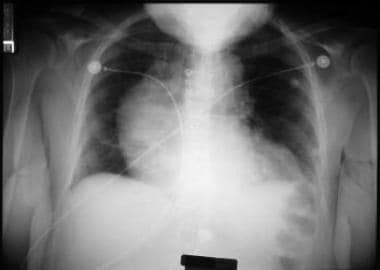 Chest radiograph showing widening of superior medi