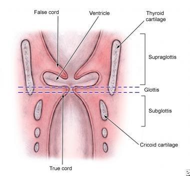 Laryngeal Stenosis: Background, Problem, Epidemiology