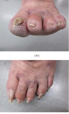 Pincer nail. Courtesy of Dermatology Research and