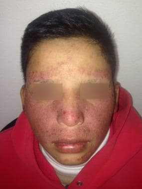 Contact dermatitis due to sunscreen in a patient w