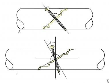 Optimal inclination of the screw in relation to a