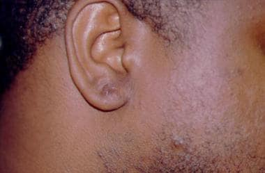 Ear lobe keloid scar postoperatively (same patient