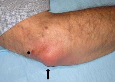 Inflamed olecranon bursa (arrow) and an acceptable