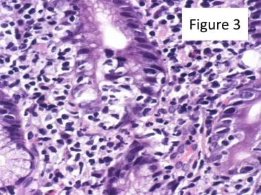 Lymphoepithelial lesions (LELs) can be seen in thi