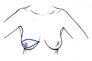 Elliptical skin incision enclosing nipple-areola c